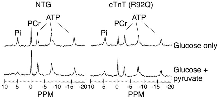 Sum of 31P NMR spectra from six 16-week-old NTG (left) and R92Q (right) ...