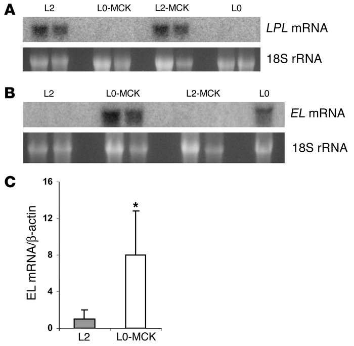 Murine LPL and EL mRNA expression in adipose tissue. Relative abundance ...