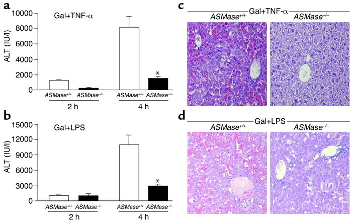 In vivo TNF-α–induced liver damage in ASMase knockout mice. (a) ASMase+/...
