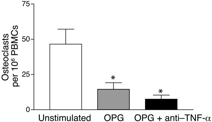 OPG inhibits osteoclast formation in unstimulated PsA PBMCs. TRAP osteoc...