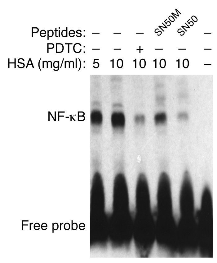 Role of NF-κB by EMSA. EMSA was performed with nuclear extracts of PTECs...