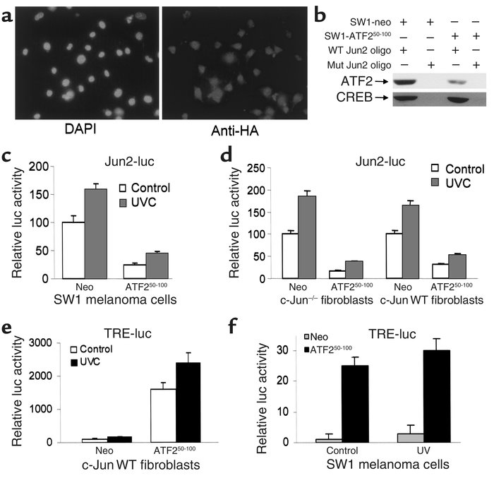 (a) Expression of the ATF250–100 peptide in SW1 cells. Mouse melanoma tu...