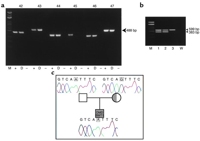 Deletion of dystrophin exon 45 in DMD-BMT1 genomic DNA by PCR. (a) DNA a...