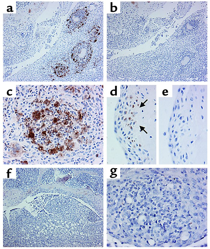 Immunohistochemical staining for SOCS-1 during acute inflammatory arthri...