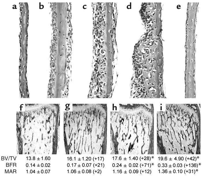Proteasome inhibitors stimulate bone formation in vitro and in vivo. (a–...