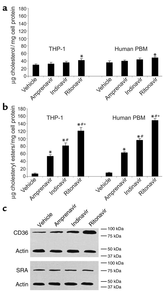 HIV protease inhibitors induce the accumulation of cholesteryl ester in ...