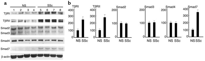 Expression levels of TβRI, TβRII, Smad2, Smad3, Smad4, and Smad7 in norm...