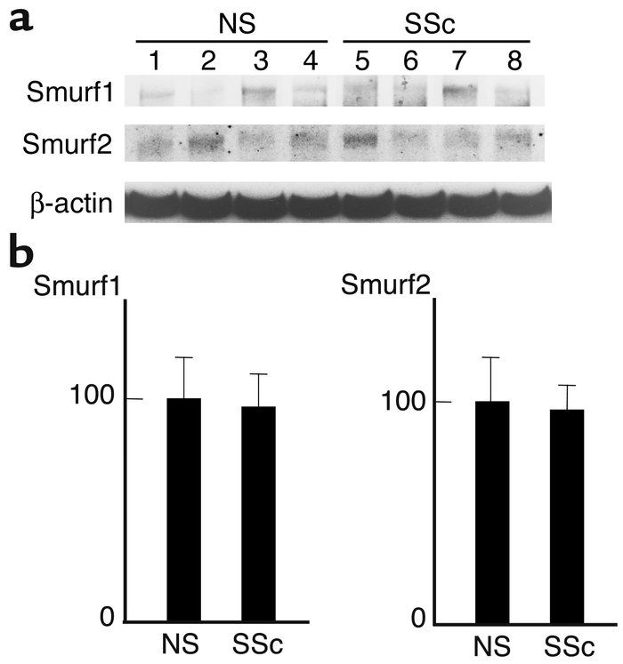 Comparison of the expression levels of Smurfs between normal and sclerod...