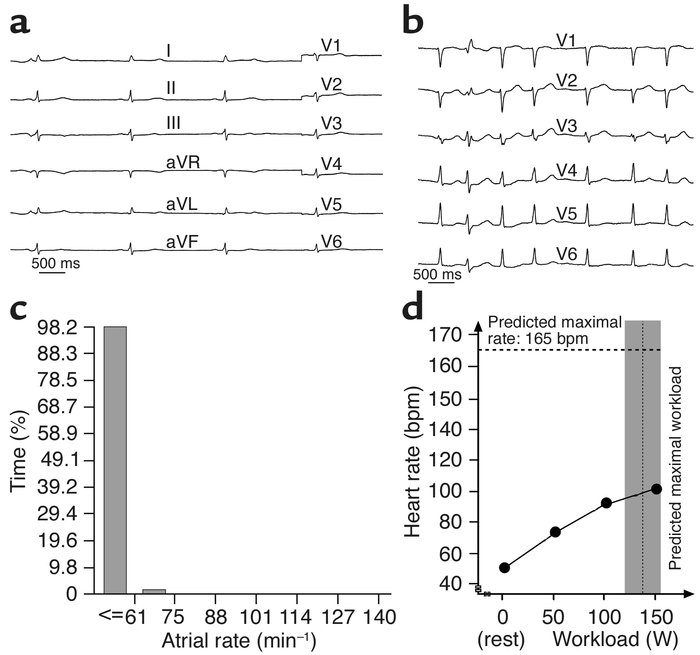 (a) Baseline electrocardiogram of the index patient showing marked sinus...