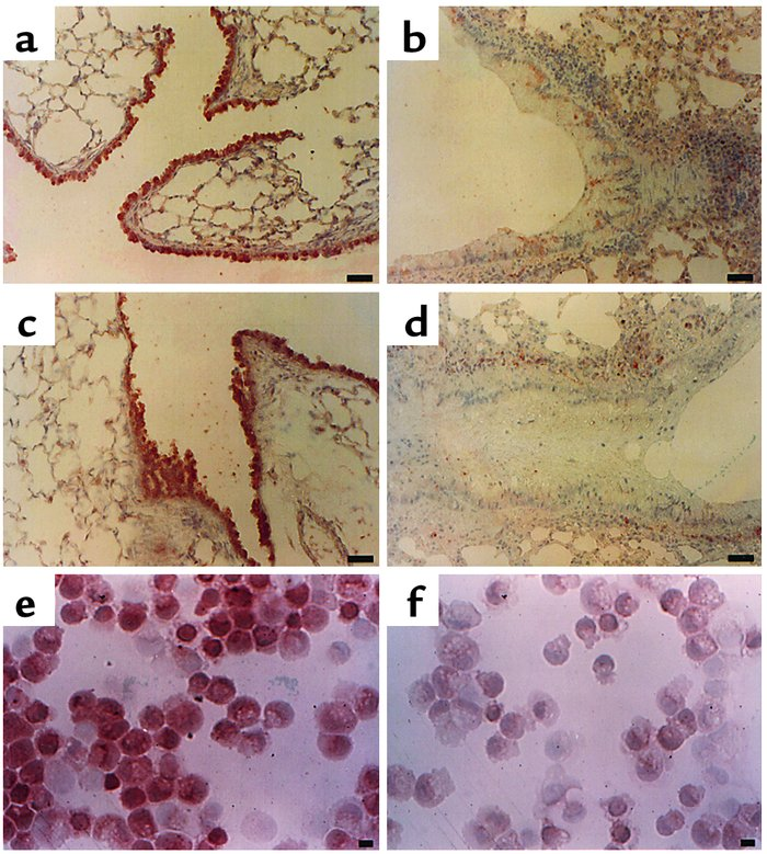 Localization of immunoreactive PTEN in lung tissues and tracheal epithel...