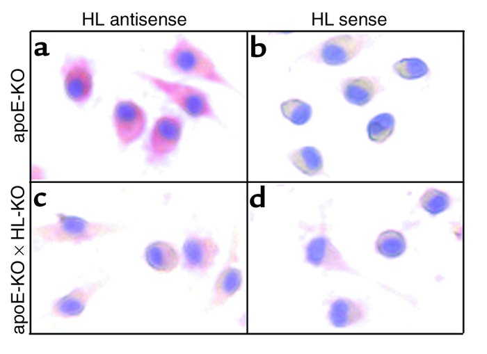 In situ hybridization of HL mRNA in peritoneal macrophages from apoE-KO ...