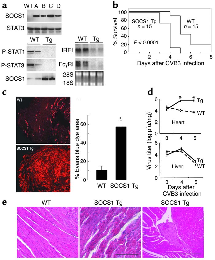 Increased myocardial injury, virus replication, and mortality in SOCS1 t...