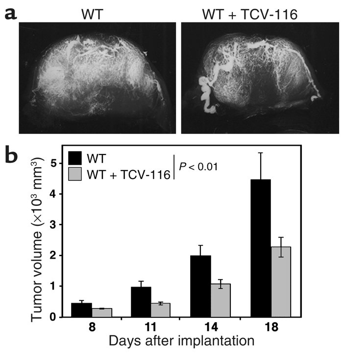 Suppression of tumor angiogenesis and growth in WT mice by treatment wit...