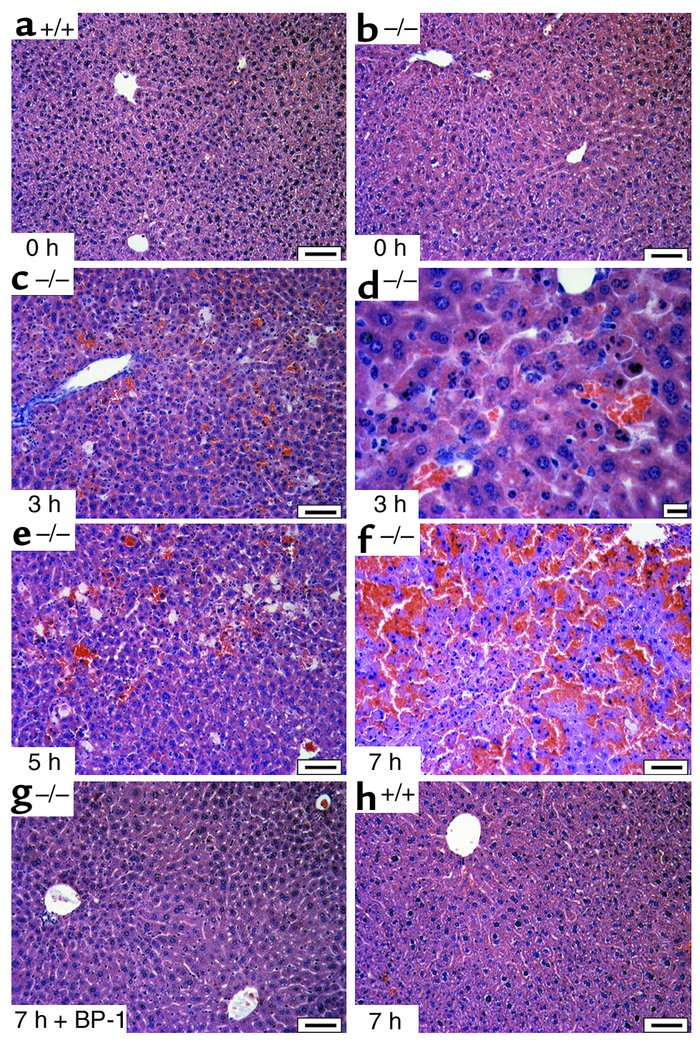 Increased acute Fas-mediated injury of IGFBP-1–/– livers following 0.15 ...
