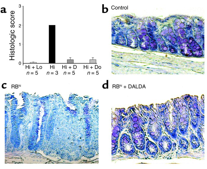 MOR agonists prevent histologic colitis in reconstituted SCID mice. (a) ...