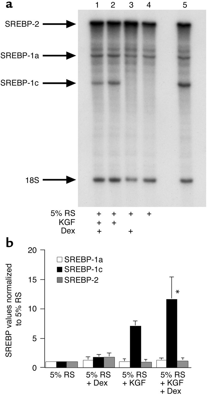SREBP-1c mRNA level is increased in the differentiated cultures. Type II...