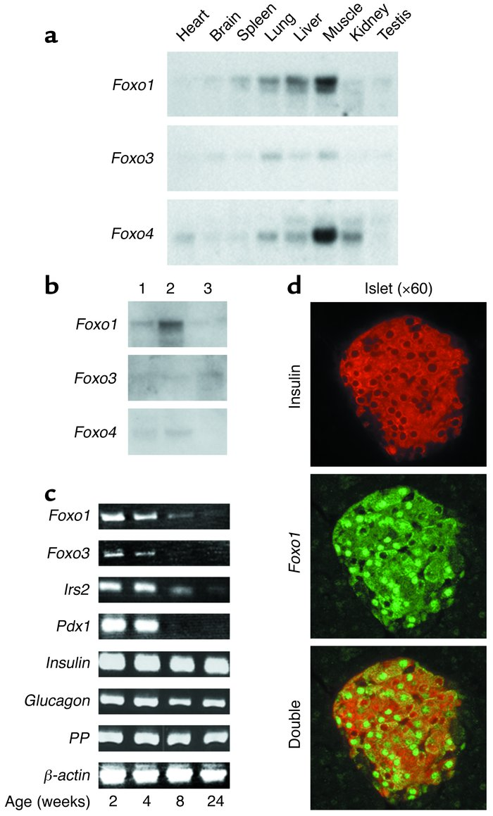(a) Tissue survey of Foxo isoform expression in mice. We hybridized mult...