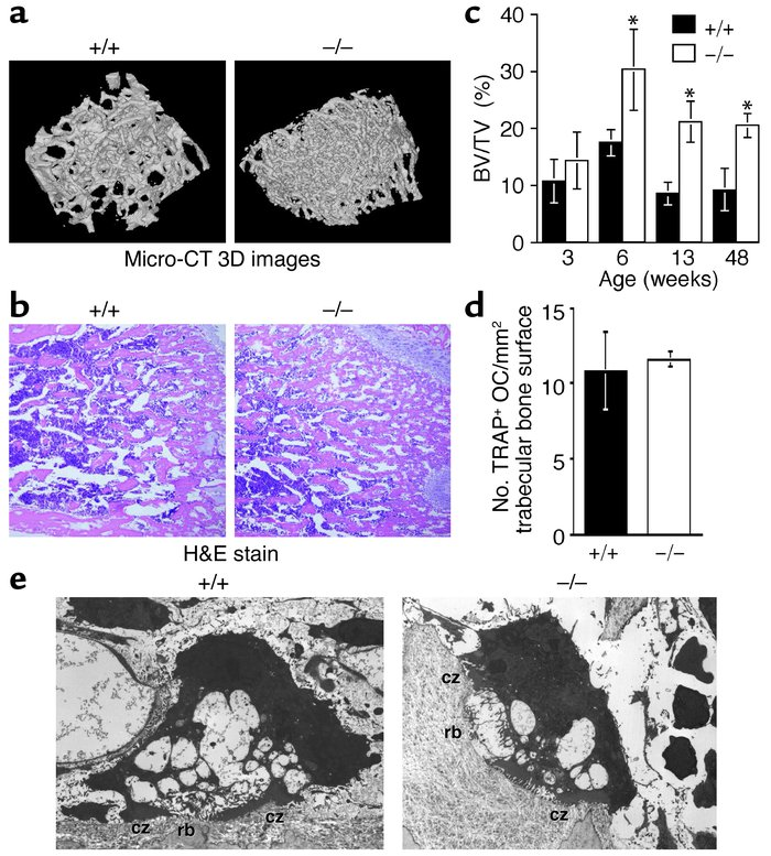 Osteopetrosis in DAP12–/– mice. (a) Micro-CT 3D images of tibial metaphy...