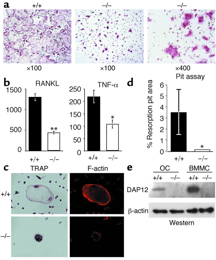 In vitro development of osteoclasts from DAP12–/– mice is impaired. (a) ...