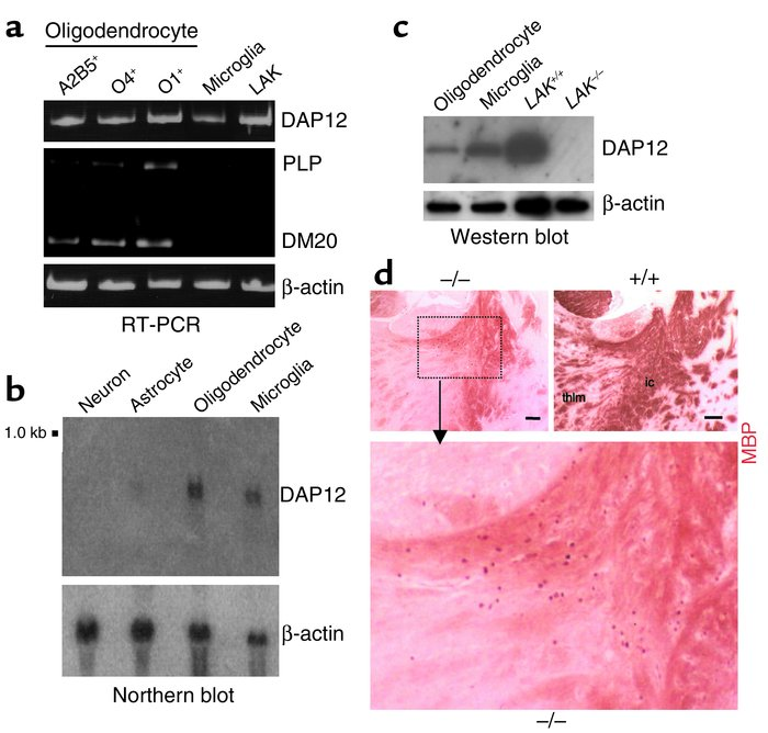 Expression of DAP12 in oligodendrocytes, and ectopic oligodendrocytes in...