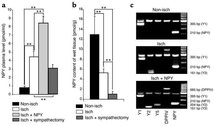 Rat hindlimb ischemia stimulates NPY release and upregulates its recepto...