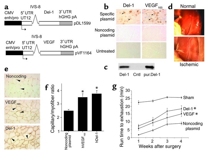 Del-1 promotes angiogenesis and restores function to murine ischemic mus...