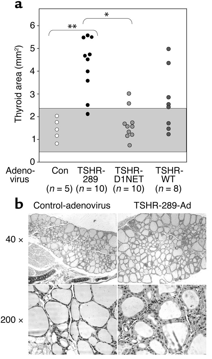 Goiter and histology in TSHR-adenovirus–injected mice. (a) Thyroid lobe ...
