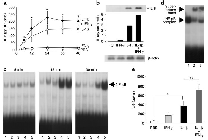 Regulation of IL-6 production by IL-1β and IFN-γ in vitro and in vivo. G...