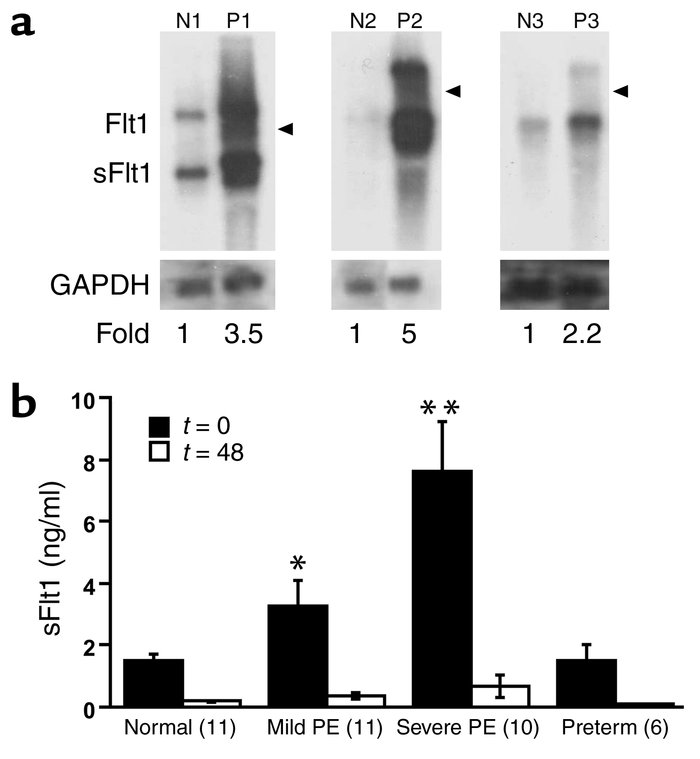 mRNA and protein expression of sFlt1 in preeclampsia. (a) mRNA expressio...