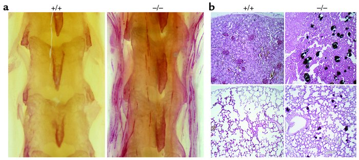 A mineral/vitamin D–rich diet leads to ectopic calcification in Ahsg–/– ...