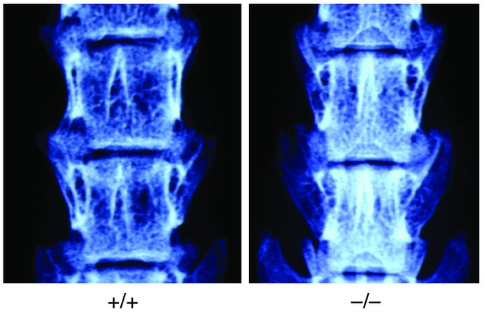 Radiographic analysis of the vertebrae of 3-month-old female wild-type a...
