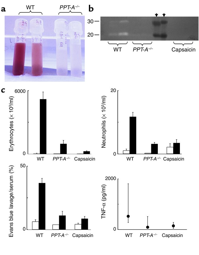 Attenuation of immune complex–mediated injury by PPT-A gene deletion and...