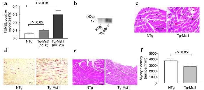(a) TUNEL-positive myocytes in the LV myocardium. We analyzed five Tg-Ms...