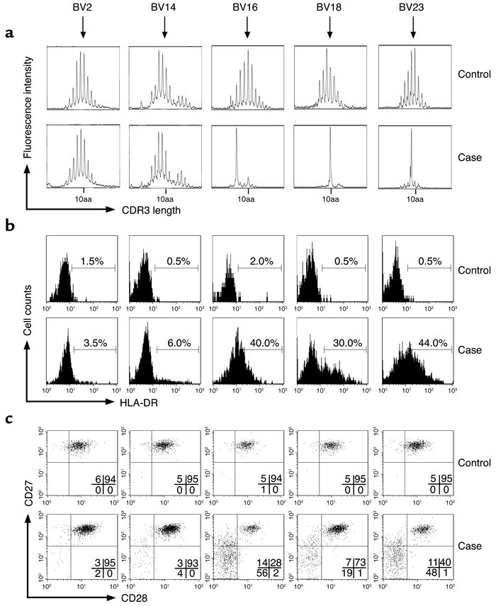 TCR BV spectratypic analysis of CD8+ T lymphocytes and phenotypic analys...