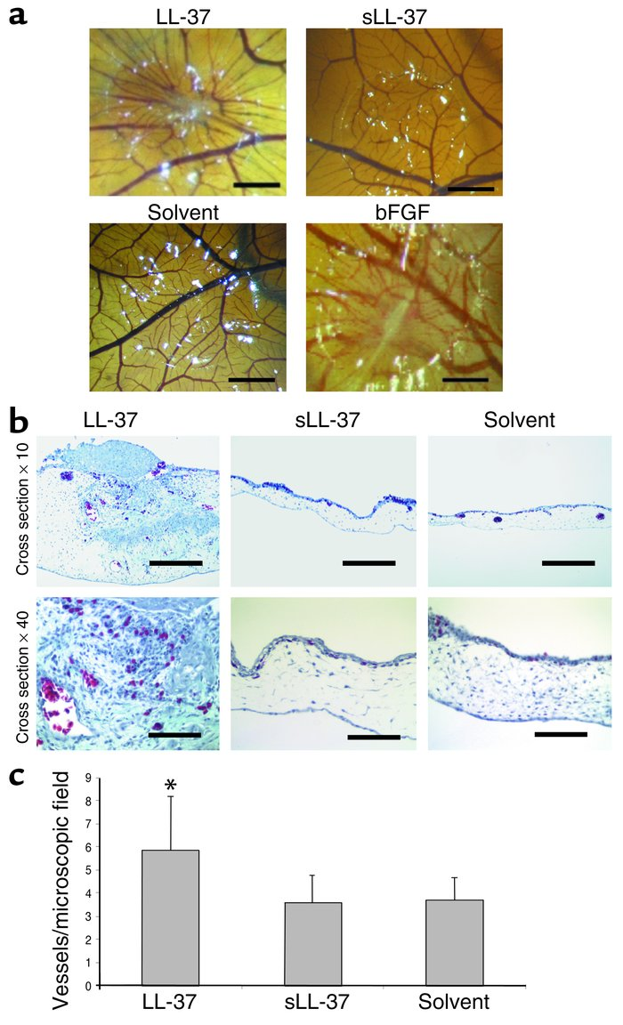 LL-37 induces physiologic angiogenesis in the CAM assay. (a) LL-37 (5 μg...
