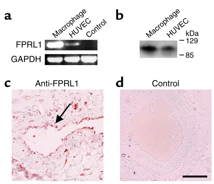 Endothelial cells express FPRL1 in vitro and in vivo. (a) Detection of F...