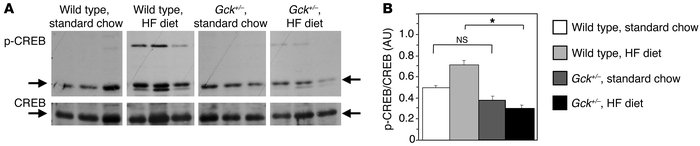 Impaired Ser133 phosphorylation of CREB in Gck+/– mice on HF diet.      ...