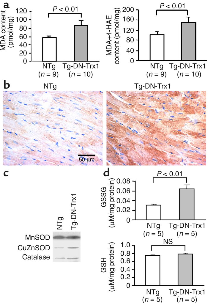 (a) Heart homogenates were prepared from Tg-DN-Trx1 mice and NTg litterm...