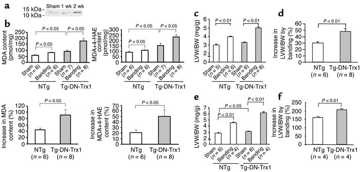 Tg-DN-Trx1 mice and NTg littermates were subjected to either transverse ...