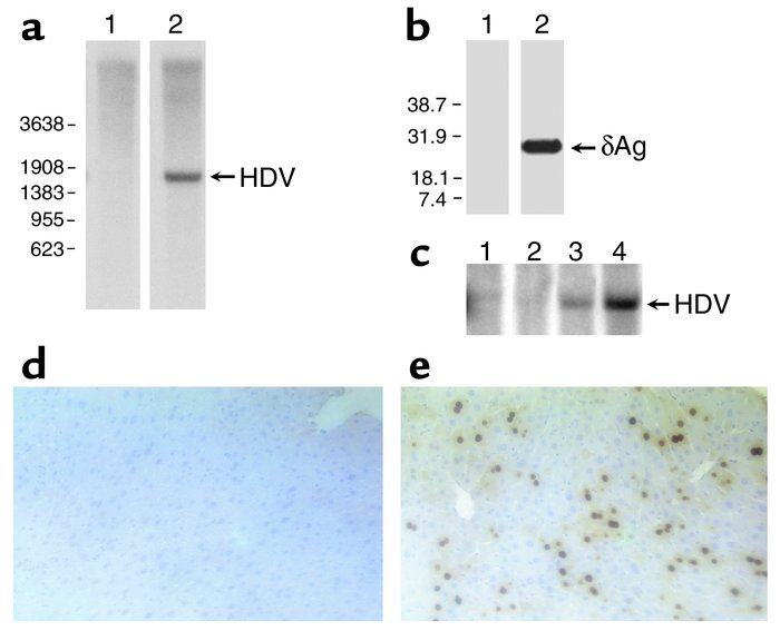 Intrahepatic replication of HDV following hydrodynamic transfection. Mic...