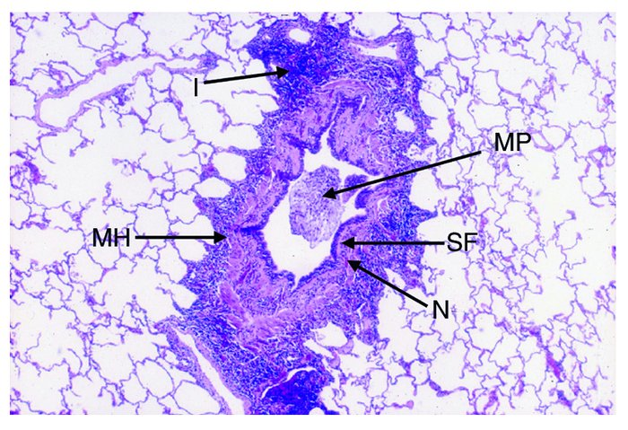 Inflammation and remodeling in the asthmatic airway. There is impressive...
