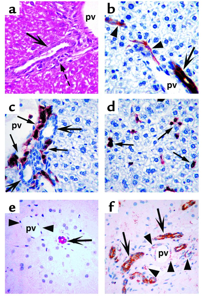 SDF-1 expression and engrafting cell accumulation within the liver. (a–d...