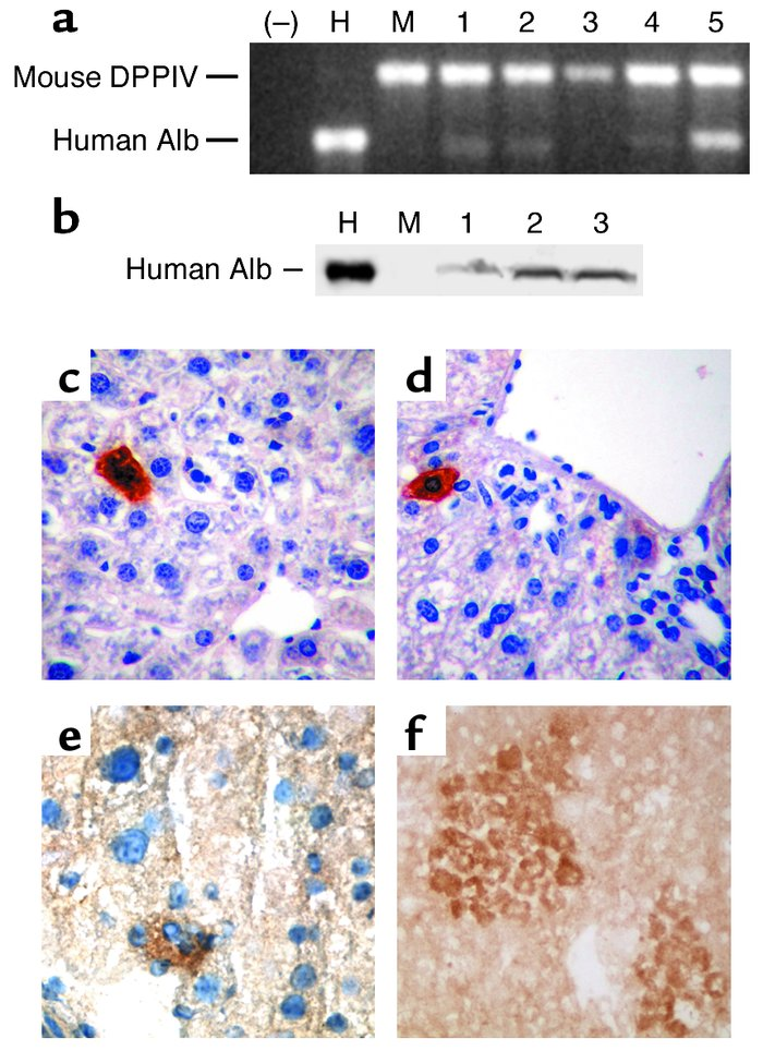 Hepatic differentiation of human albumin–producing cells within the live...