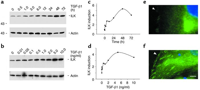 TGF-β1 induces ILK expression in renal tubular epithelial cells. (a–d) W...