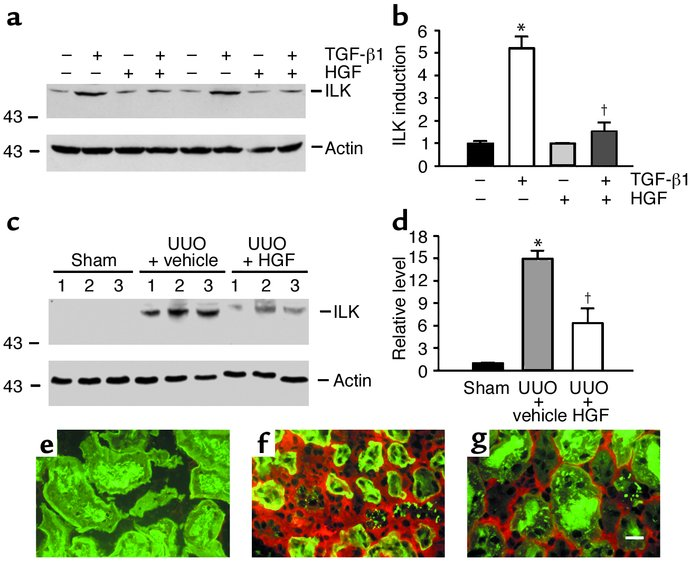 Inhibition of ILK expression in tubular epithelial cells by HGF in vitro...