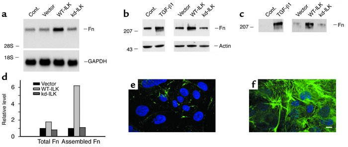 Forced expression of ILK induces fibronectin expression and its extracel...