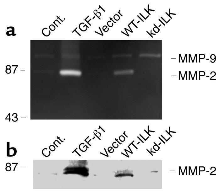 Expression of ILK induces MMP-2 expression and secretion by tubular epit...
