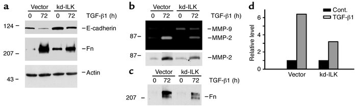 Ectopic expression of kd-ILK largely blocks TGF-β1–induced phenotypic tr...