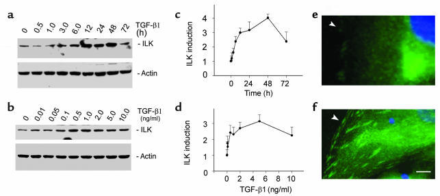 TGF-β1 induces ILK expression in renal tubular epithelial cells.        ...