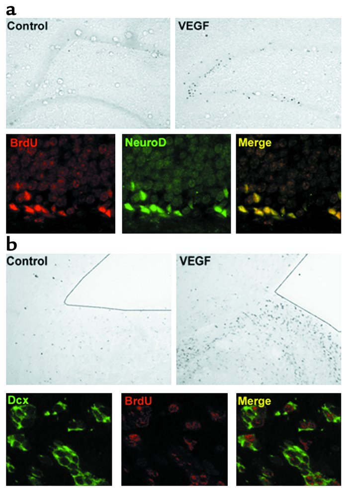 Colocalization of BrdU and markers of neuronal lineage in DG (a) and SVZ...